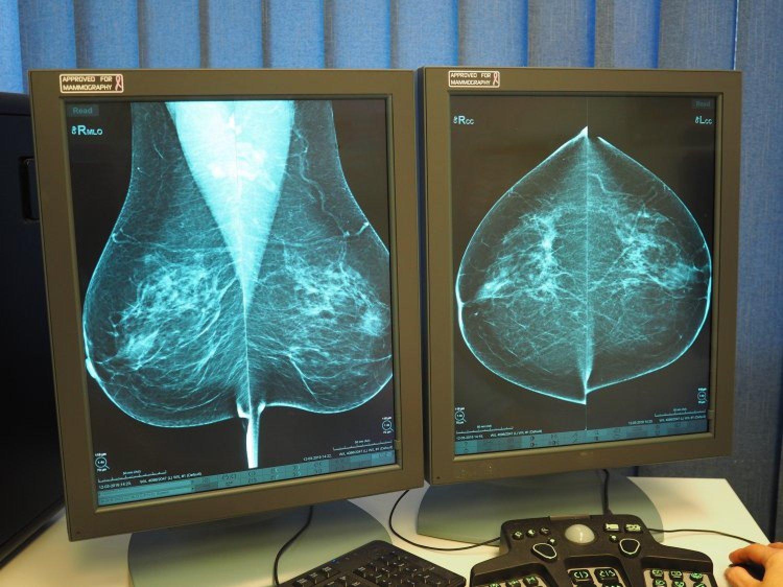 Štartuje skríning rakoviny prsníka. FOTO: www.preventivne.sk